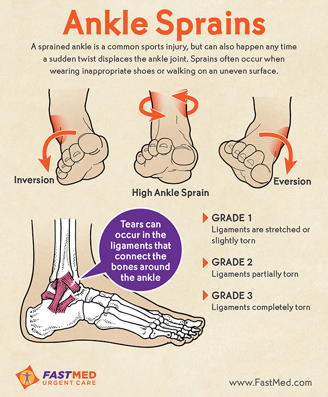 What are the Different Types of Ankle Injury?