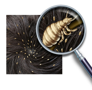 head lice close-up