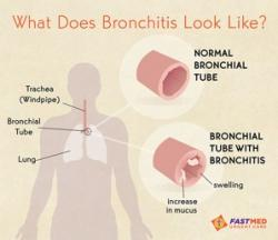 Bronchitis treatment in AZ NC