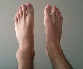 sprained vs broken ankle