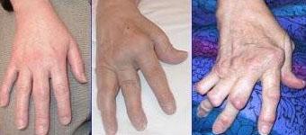 Swollen Joints in Fingers