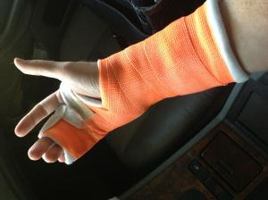 Sprained Wrist vs. Broken Wrist