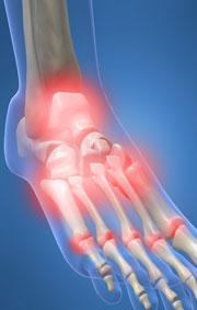 Heel Pain When Walking