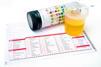 Urine Drug Screens