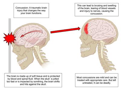 Mild Concussion