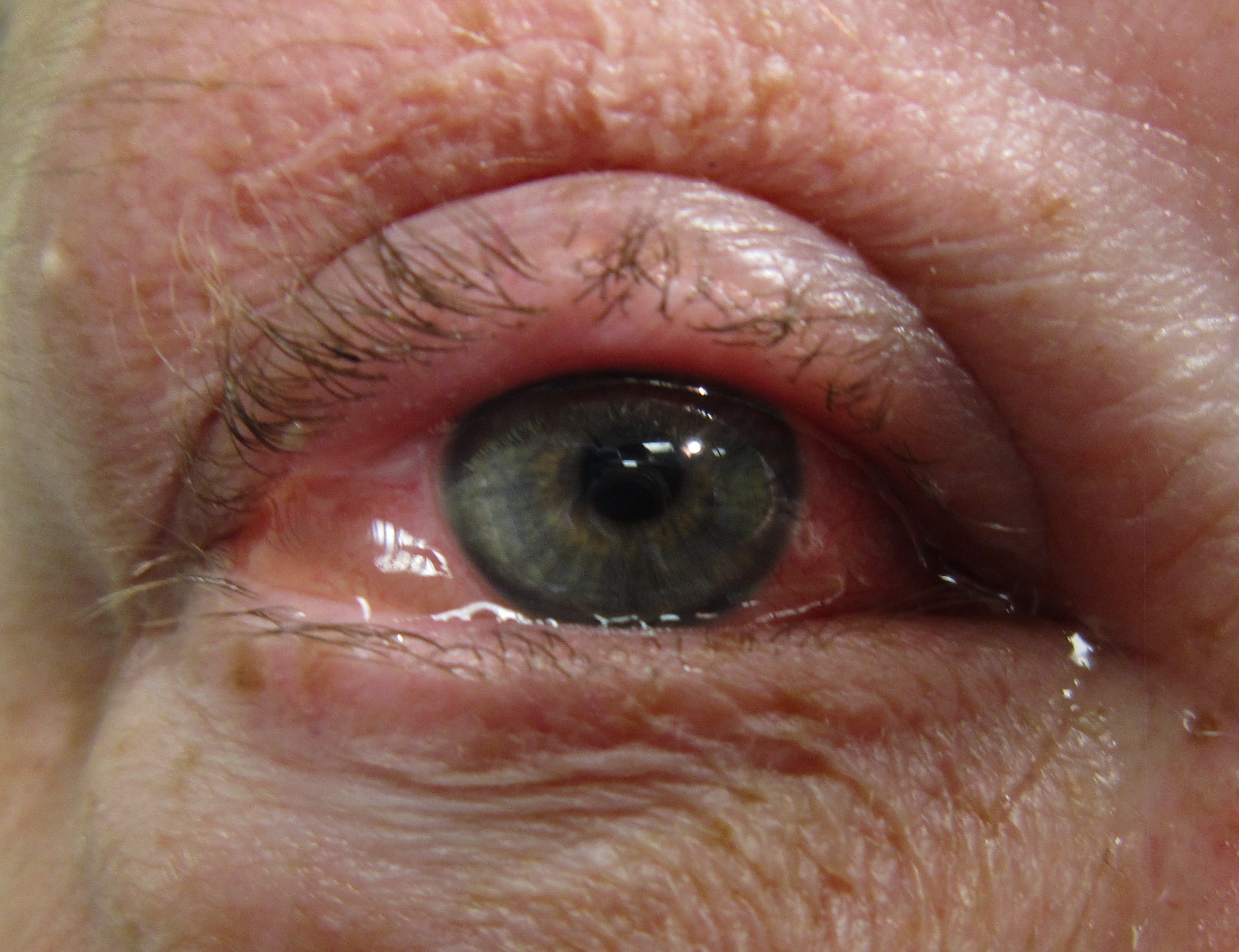 an eye with allergic conjuvitis