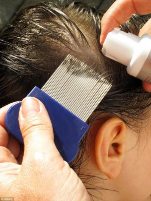 How to Treat a Child With Head Lice