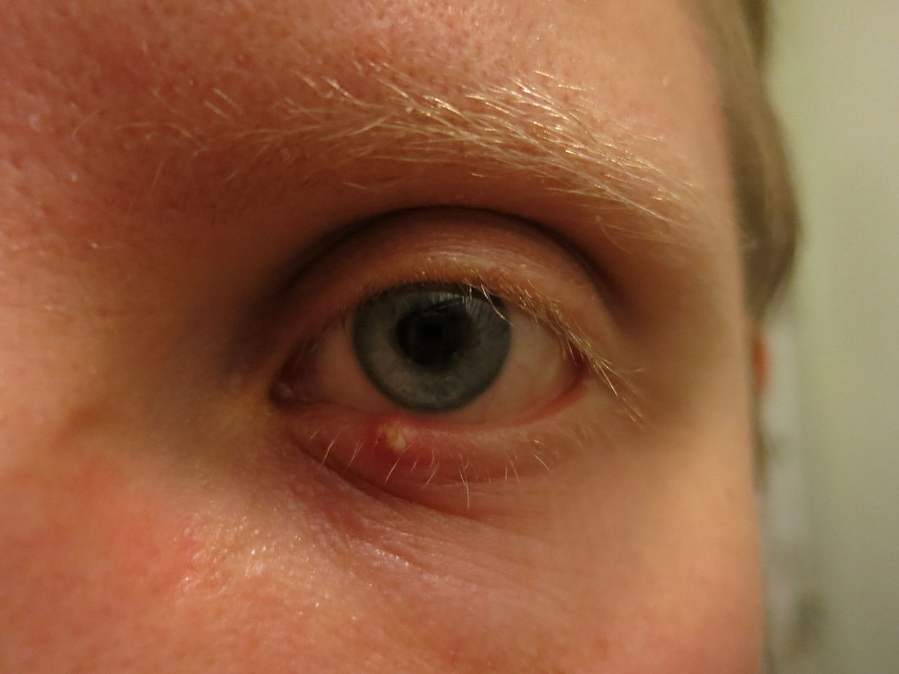 person with a stye under their eye