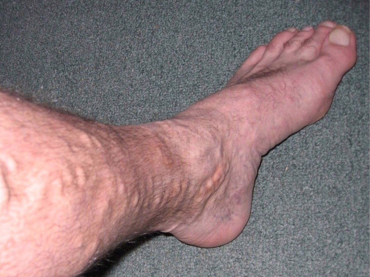 person with vericose veins in their leg
