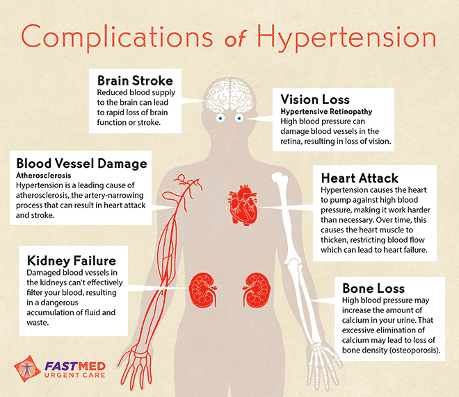Image result for complications of hypertension