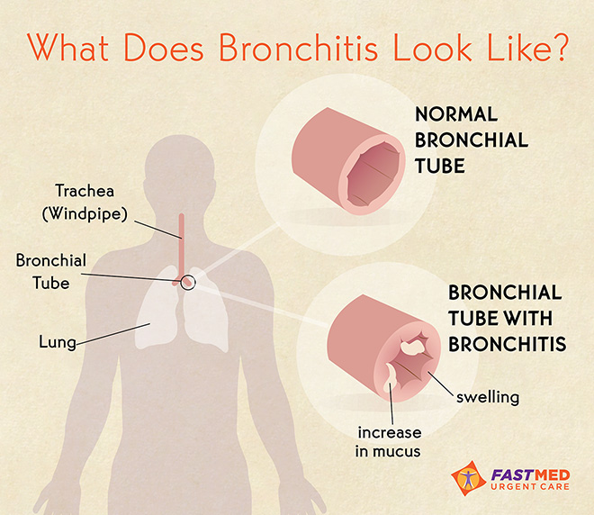 What does bronchitis look like?