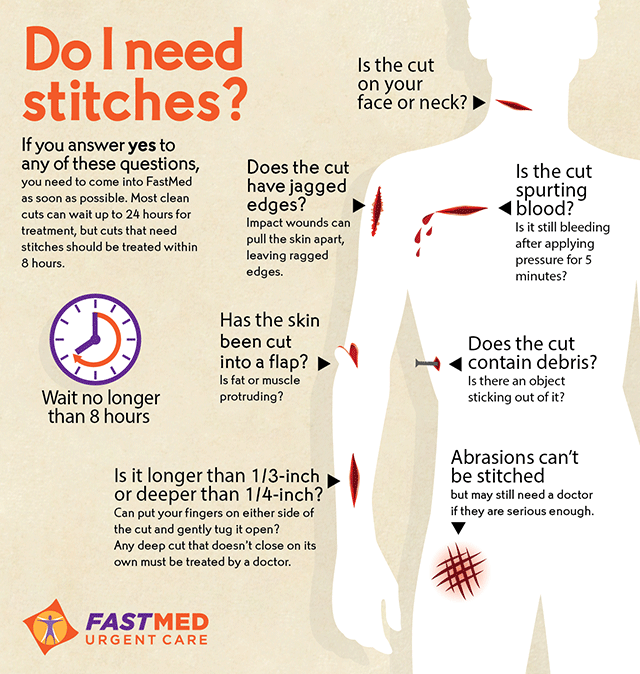 Do I Need Stiches? [INFOGRAPHIC]