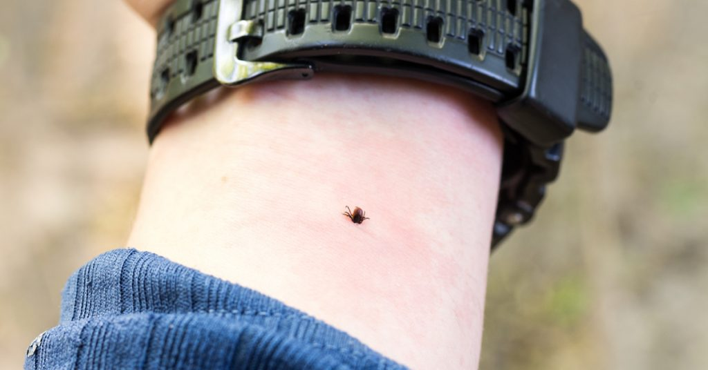 Picture of a tick on a man's arm.